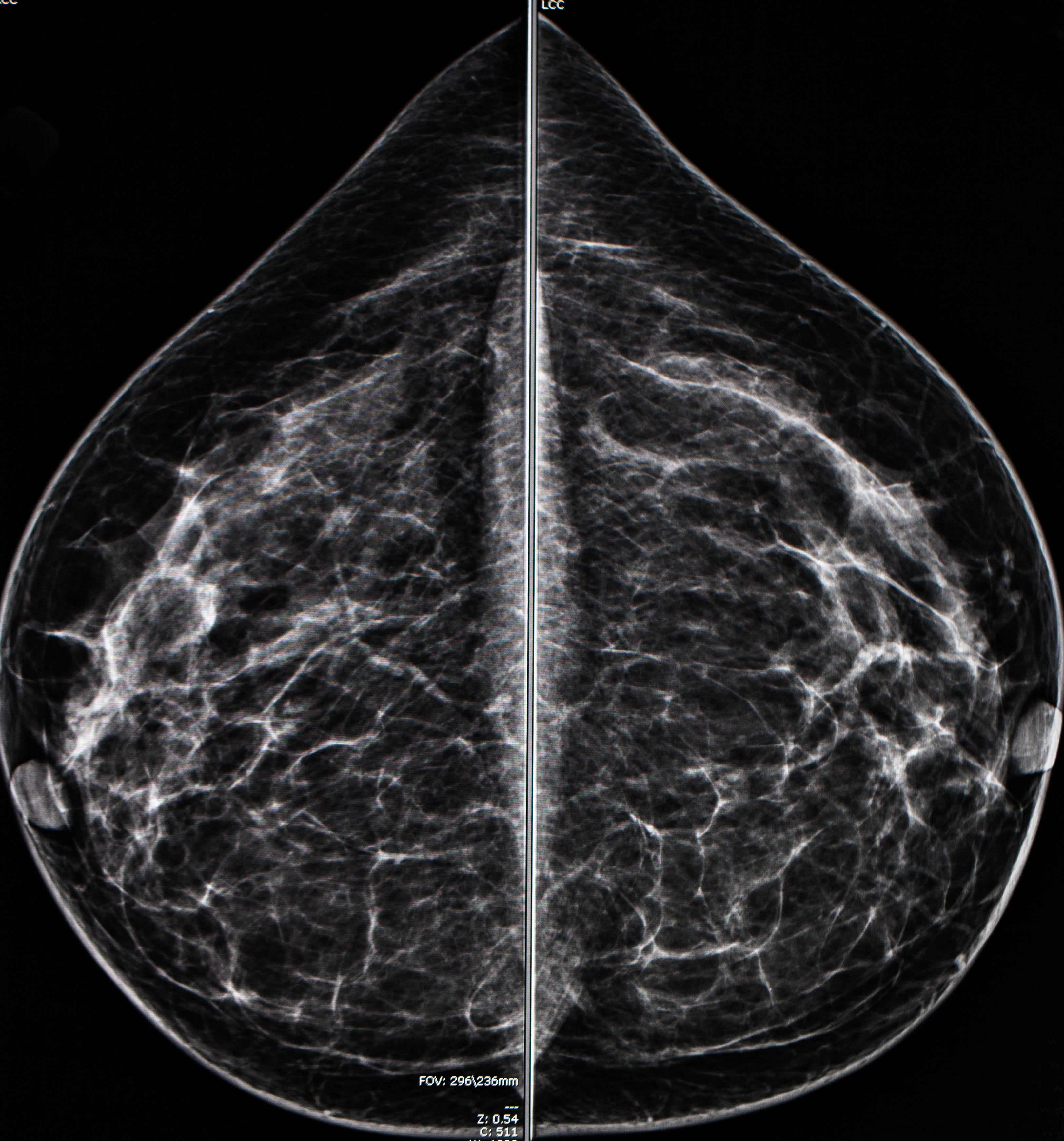 Mammogram Radio Imaging For Breast Cancer Diagnosis Odc
